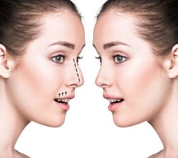 תמונות של ניתוח אף לפני ואחרי אצל נשים