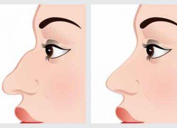 ניתוח אף רחב לפני ואחרי